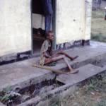 Hunger ist nur eine Folge des verheerenden Sezessionskrieges | Bild (Ausschnitt): © Centers for Disease Control and Prevention [Public domain] - Wikimedia Commons