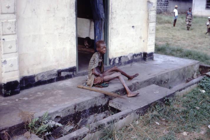Unterernährte Frau Eine Unterernährte Frau nahe der Biafra-Kriegszone | Bild: © CDC [gemeinfrei]  - Wikimedia Commons