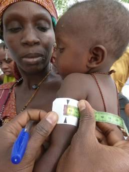 Test eines Kindes auf Unterernährung Ein Kind wird auf Zeichen von Unterernährung getestet in Nigeria, März 2011. | Bild: © Jane Miller/DFID [CC BY-SA 2.0]  - Wikimedia Commons